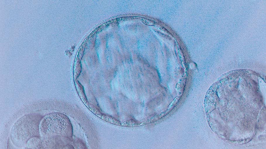 fertilys clinique fertilite services depistage diagnostique preimplantatoire dpi cellulles