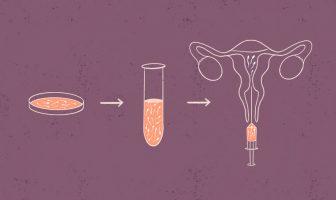 L'insémination intra-utérine, étape par étape